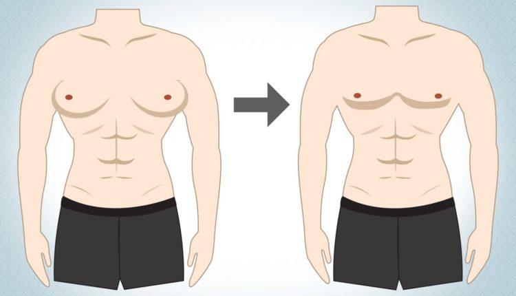 GENICO1 1 ژنیکومایستی یا بزرگ شدن پستان در مردان
