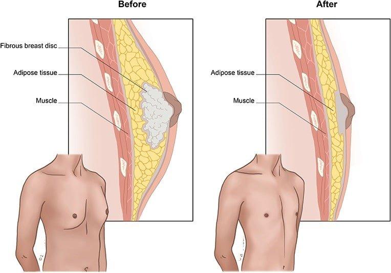 ژنیکومایستی یا بزرگ شدن پستان در مردان