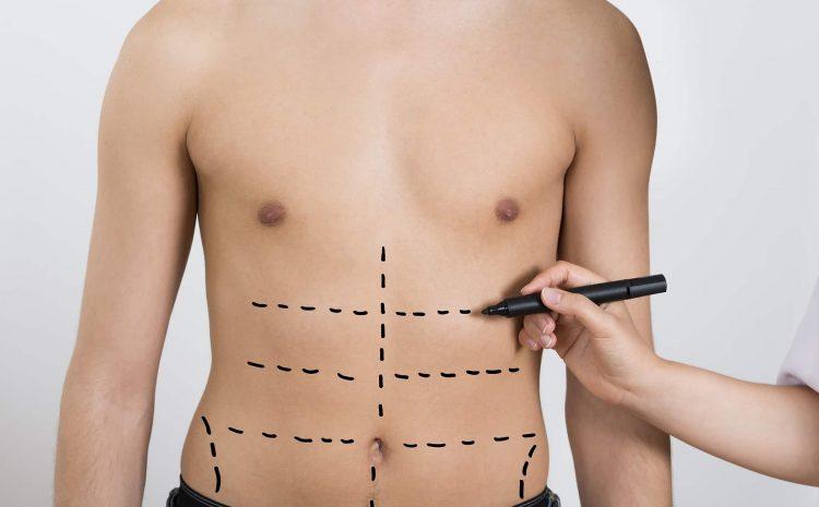 Lipomatic1 مراقبت بعد عمل لیپوماتیک