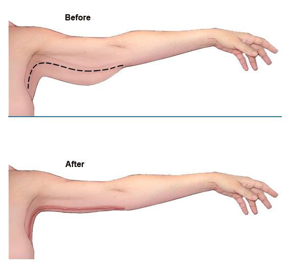 1 عمل لیفت بازو