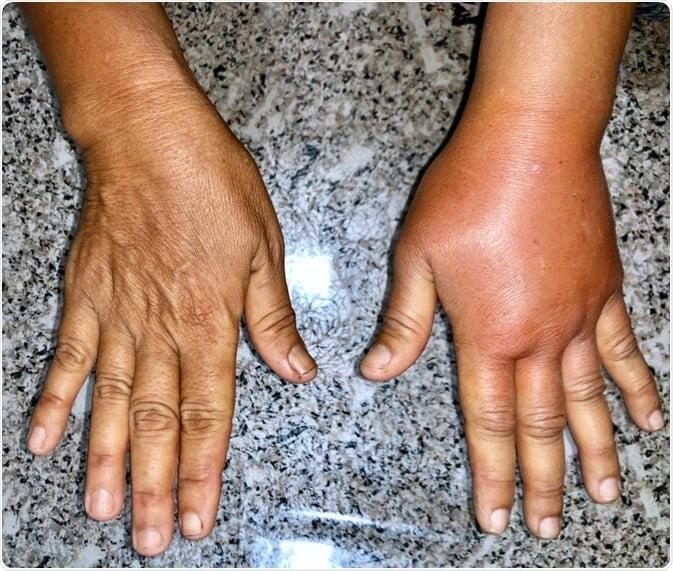 نمونه ای از لنف ادم دست ها