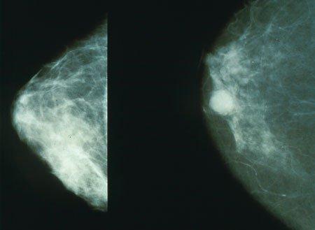 سرطان پستان ، نشانه ها و تشخیص آن