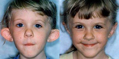 نمونه انجام عمل اتوپلاستی در کودکان