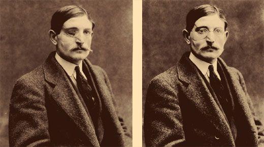 نمونه عمل جراحی صورت در گذشته