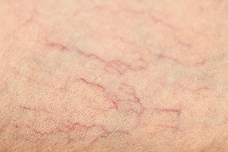 رگ های عنکبوتی و راه های جلوگیری از ایجاد آن