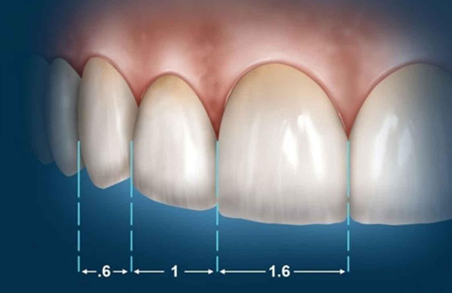نسبت طلایی در دندان ها 1 زیبایی و نسبت طلایی