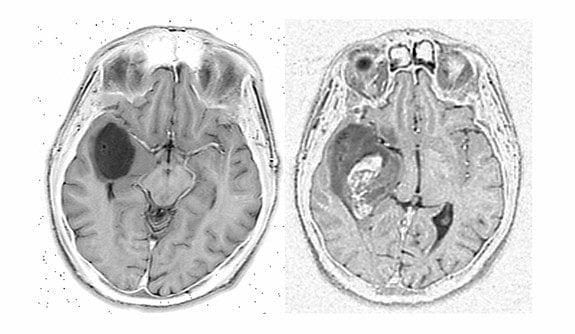 تومور بدخیم در تصویر