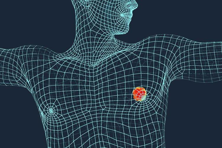 male breast cancer سرطان پستان در مردان