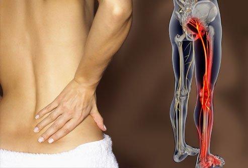 روش تشخیص درد سیاتیک