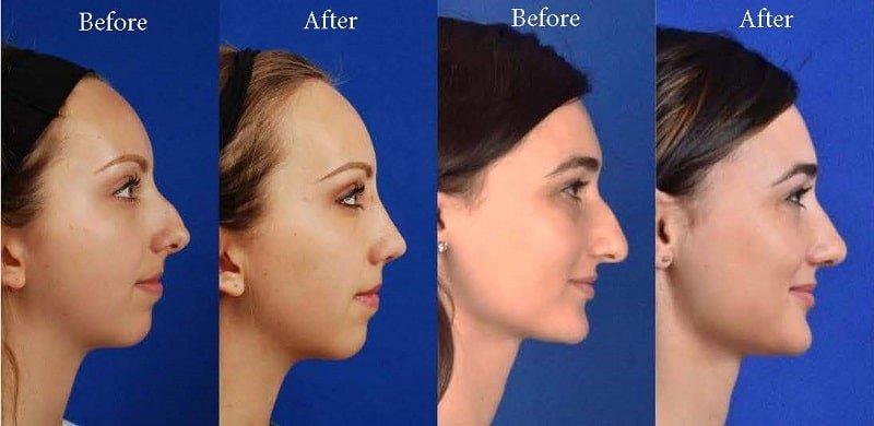 عمل جراحی تیغه بینی