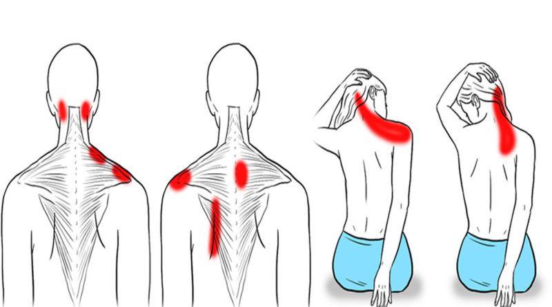 نقاط گرفتگی گردن و شانه