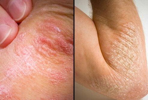 پسوریازیس بر روی پوست بدن