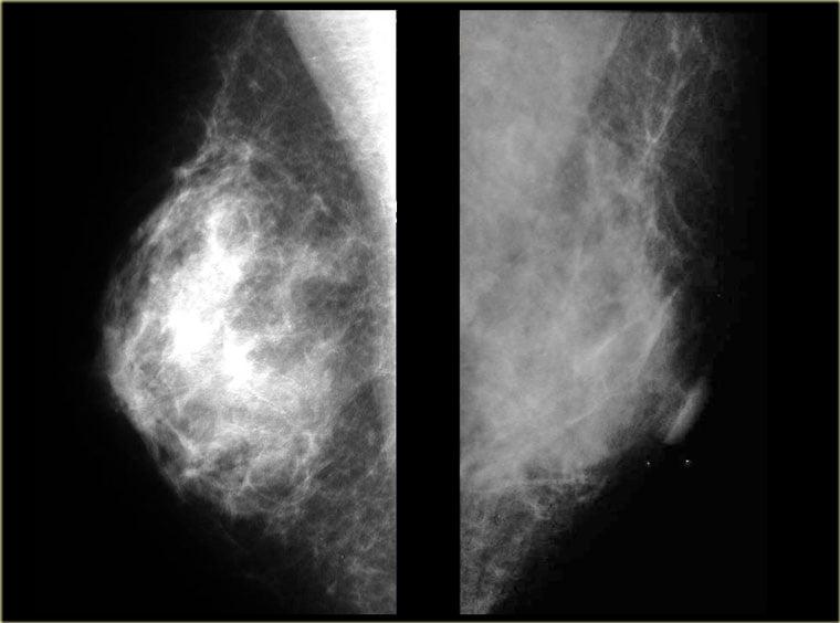 علت رشد غیرطبیعی پستان ها