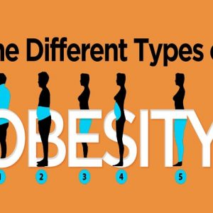 انواع مختلف چاقی