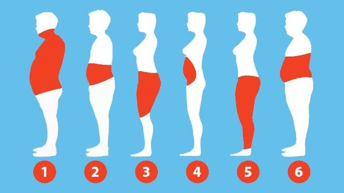 تایپ های مختلف چاقی
