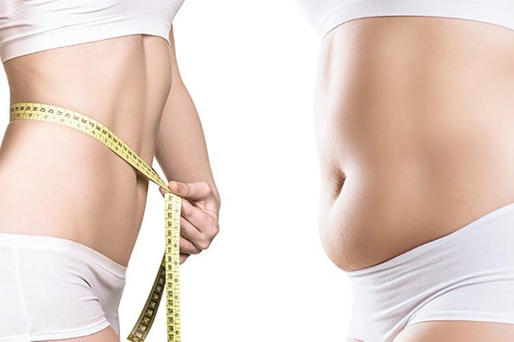 لیپوساکشن و درمان چاقی